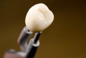 CEREC dental treatment