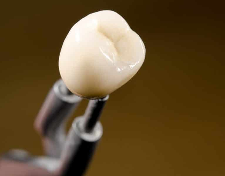 CEREC dental treatment
