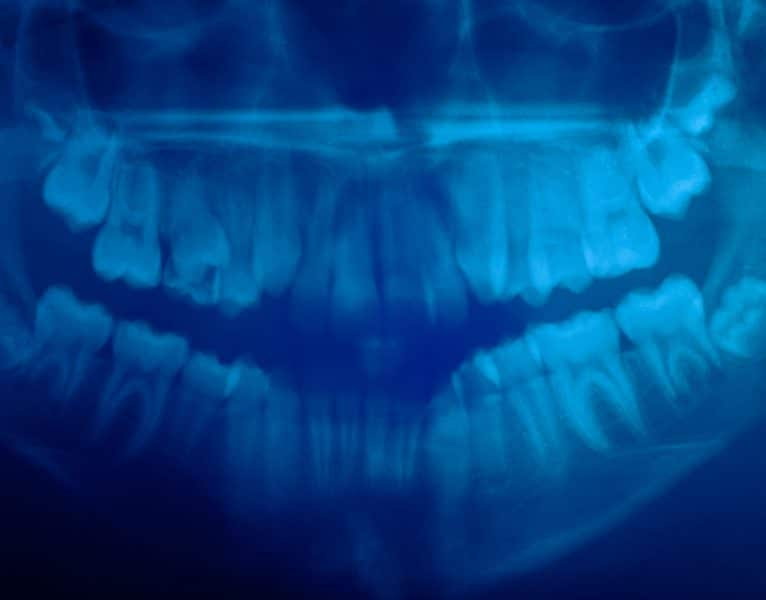 Dental CT Scan from Sarasota Dentistry