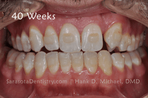 40 Weeks Dental Treatment Pic Results
