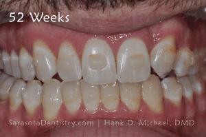 52 Weeks Dental Treatment Results