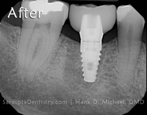 After Dental Implant X-Ray