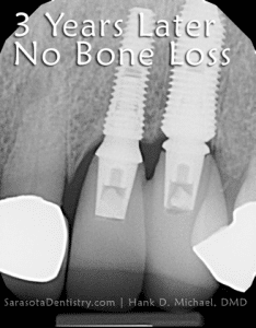 dental implants 3 years after procedure