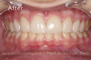 After Dental Treatment at Sarasota Dentistry Pic