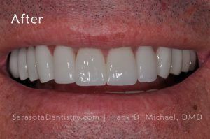 After Dental Care Pic from Sarasota Dentistry
