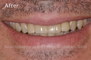 After Pic of Dental Care from Sarasota Dentistry