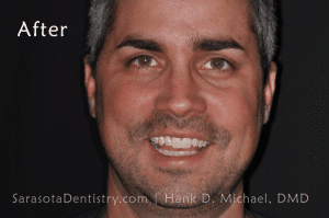 After Dental Treatment with Sarasota Dentistry 2