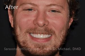 After Dental Treatment with Sarasota Dentistry 3