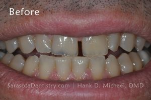 Before Pic of Dental Care at Sarasota Dentistry