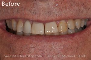 Before Dental Care with Sarasota Dentistry