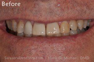 Before Dental Care with Sarasota Dentistry