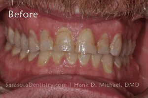 Before Pic of Dental Care from Sarasota Dentistry
