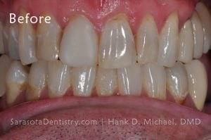 Before Pic of Dental treatment at Sarasota Dentistry