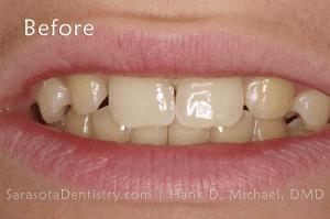 Before Dental Treatment at Sarasota Dentistry pic