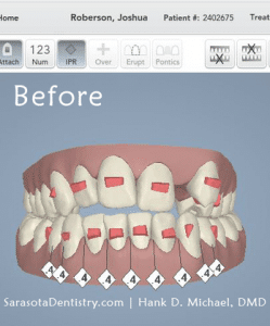 3D Dental Scan Image Before Treatment