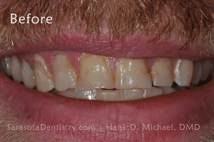 Before Pic of Dental Care with Sarasota Dentistry