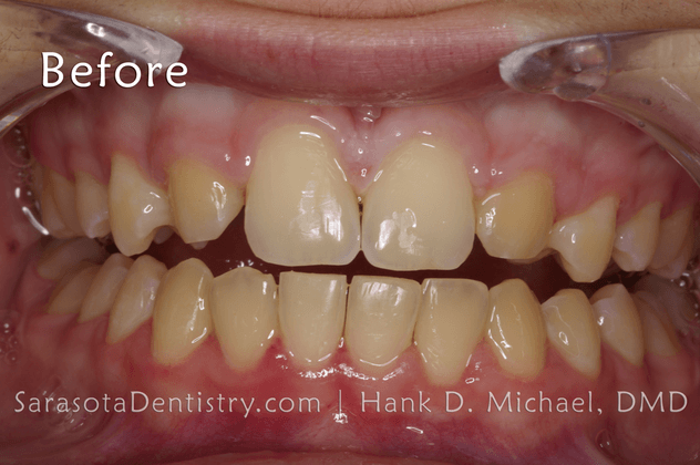 Before Pic of Dental Treatment with Sarasota Dentistry