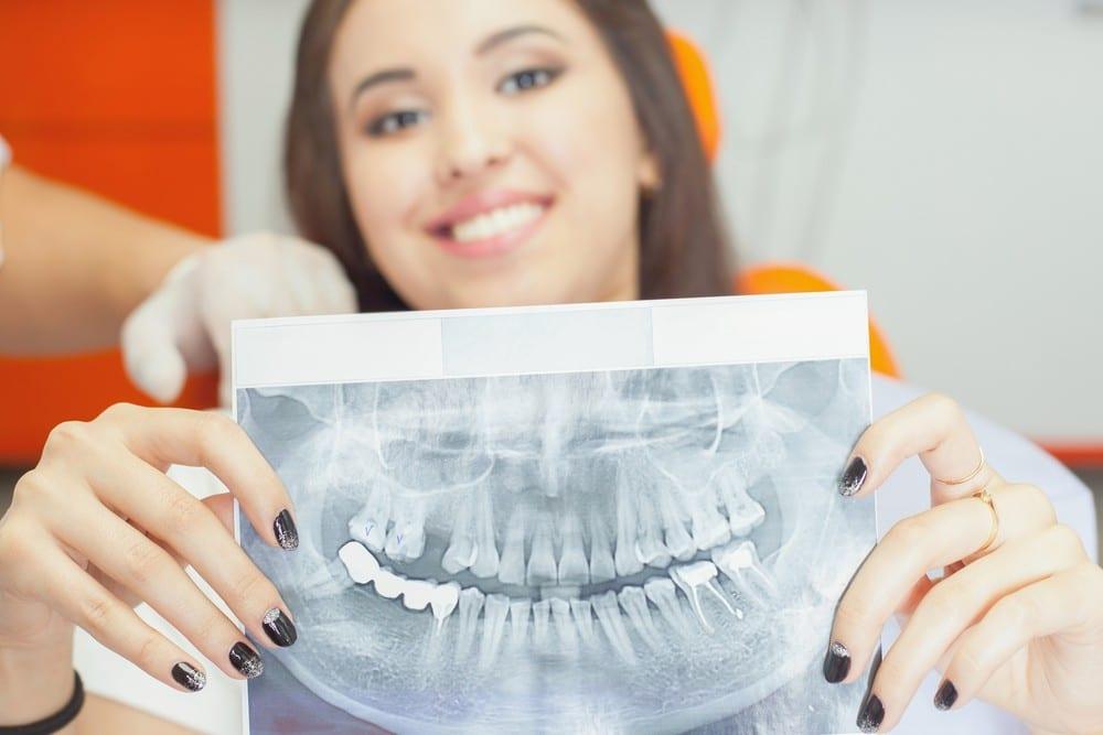 Full Arch Dental Implants at Sarasota Dentistry