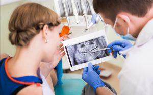 Dental Implants at Sarasota Dentistry