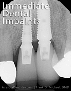 dental implant x-rays from Sarasota Dentistry