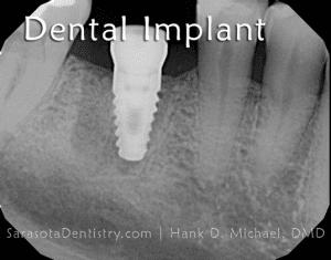 Dental Implant x-Ray Image from Sarasota Dentistry