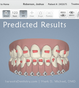 3D Dental Scan Image Predicted Results