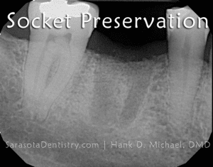 Tooth Socket Preservation X-Ray