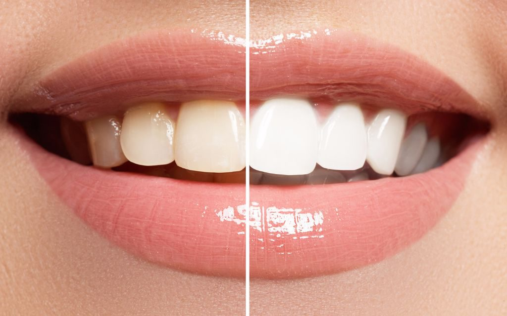 Teeth Whitening at Sarasota Dentistry