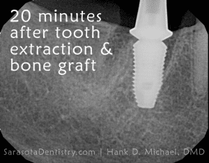 20 minutes after tooth extraction and bone graft