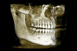 3-D Immediate dental implant CT