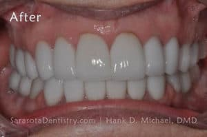 Smile #13 After Image - Porcelain Veneers