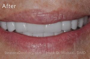 Full Smile After Photo - Porcelain Veneer case