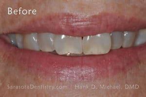 Smile #13 - face before image - porcelain veneers
