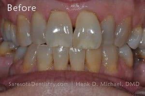 Smile #13 Before Image - Porcelain Veneers