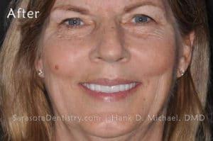 Smile #13 Full Face After Photo - Porcelain Veneers