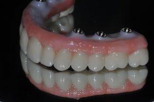 Full Arch Zirconia Prettau Dental Implants