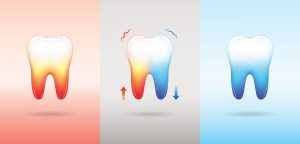 Teeth Sensitivity Causes and Cures