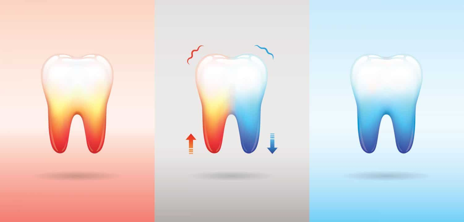 sensitive teeth: causes, treatment, and home remedies for relief