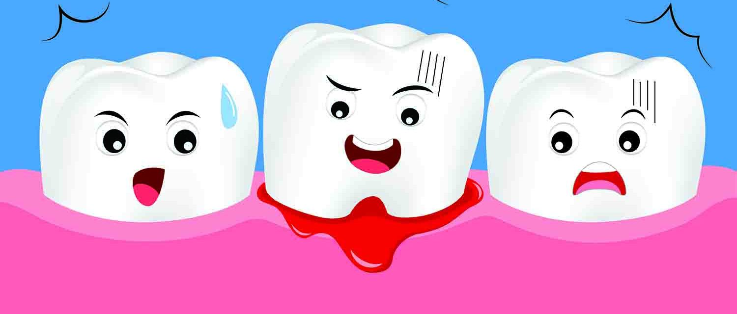 How To Stop Bleeding After Wisdom Tooth Extraction Or Dental Implants