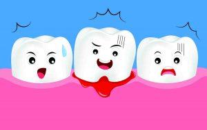 bleeding gums implant or teeth