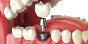 dental implant with screw