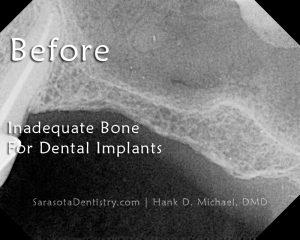 RR1-Before-Bone-Grafting