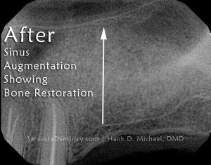 RR2-Sinus-Bone-Graft