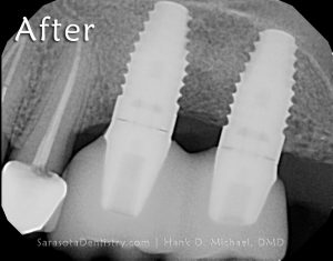 RR4-restored-dental-implants