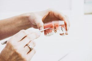 dental implant with dentist