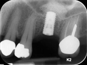dental implant xray