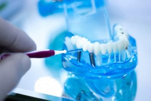 Cleaning Dental Implants on a Teaching Model