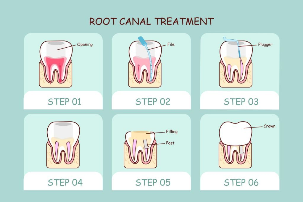 Root canal procedure steps