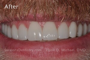 No stains with porcelain crowns