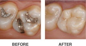 Before & After Same Day CEREC Crowns